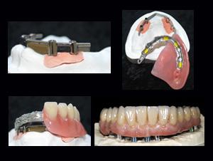 Impianto protesi | Smile 4 Fair Italia