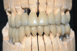 Zirconia tecnica combinata | Smile 4 Fair Italia