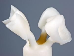 Ceramica integrale | Smile 4 Fair Italia