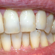 Zirconia semi stratificata | Smile 4 Fair Italia