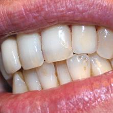 Lavorazione Zirconia Semi Stratificata | Smile 4 Fair Italia
