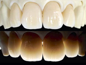 Zirconia stratificata | Smile 4 Fair Italia