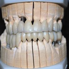 Lavorazione Zirconia Tecnica combinata | Smile 4 Fair Italia