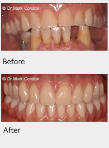 Dental Implants - Full Mouth Rehabilitation Case Study 1