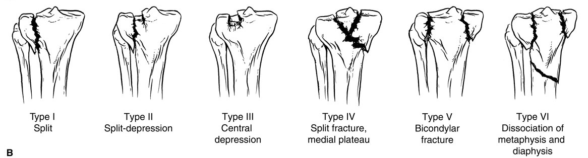 Tibial Plateau Fracture - an account of treatment and recovery from ...