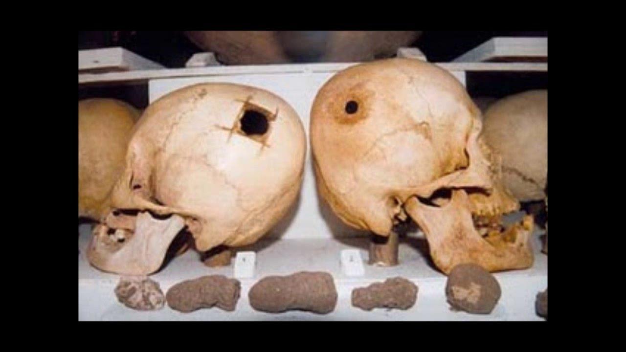 La Trepanacion: Algunos de nuestros antepasados se perforaban el craneo