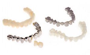 diseño dental asistido ordenador