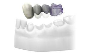 clínicas dentales cad cam madrid