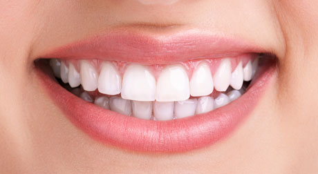 Tooth Whitening Airdrie and Glasgow. 2