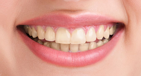 Tooth Whitening Airdrie and Glasgow