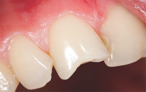Tooth Bonding MF Dental Care Airdrie