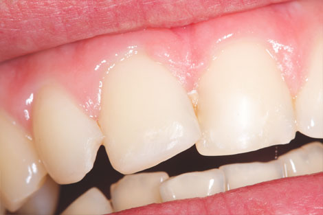 Tooth Bonding MF Dental Care Airdrie. 2