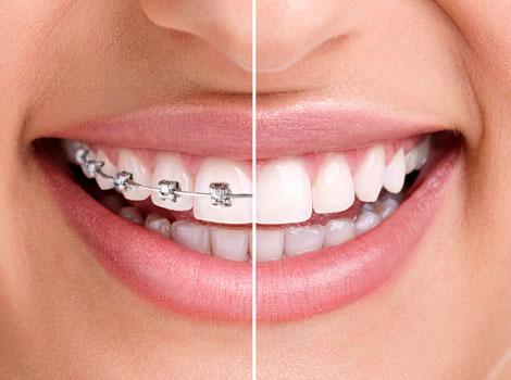 Orthodontics Airdrie