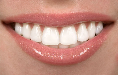 Dental Veneers Airdrie and Glasgow