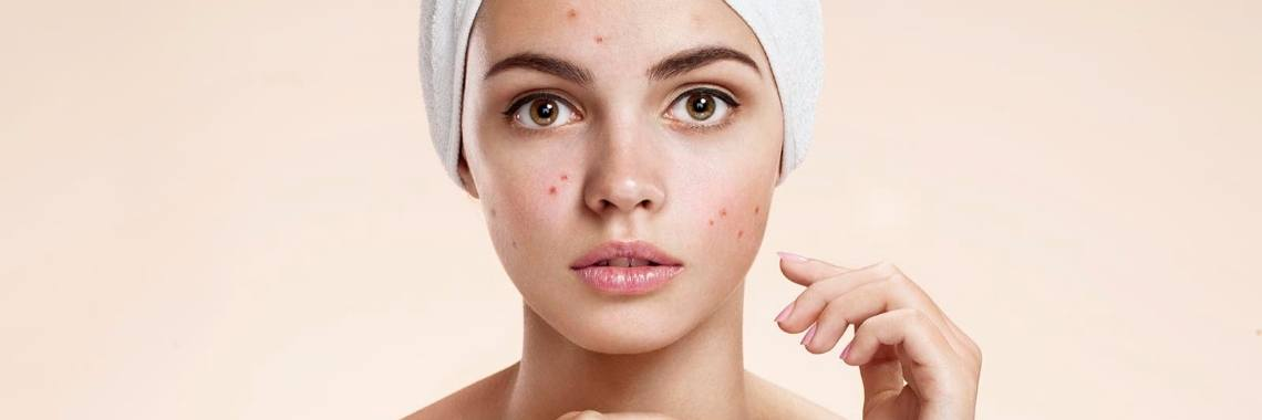 Acne - The Truth Behind Beauty