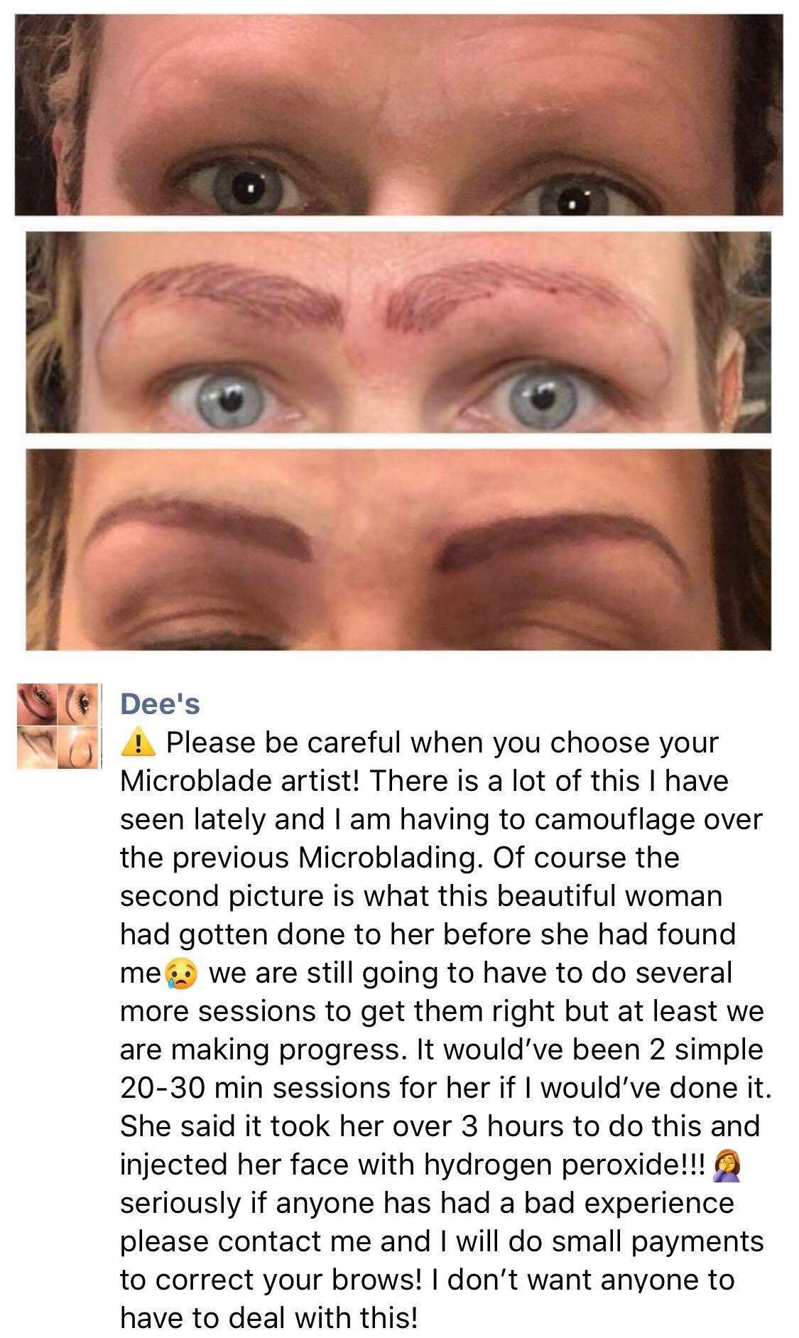 Before After Cover Up Camouflage Bad Microblading Microbladed Eyebrows Nightmare Worst Case Story Horrid Eyebrows