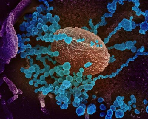 Corona Virus 56jpg