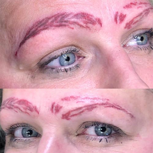 Bad Microblading MIcrobladed Eyebrows Saline Tattoo Removal Non Laser Tattoo Removal Square