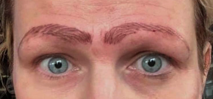 Bad Microblading Microbladed Eyebrows Worst Case Story Nightmare Horrid Eyebrows