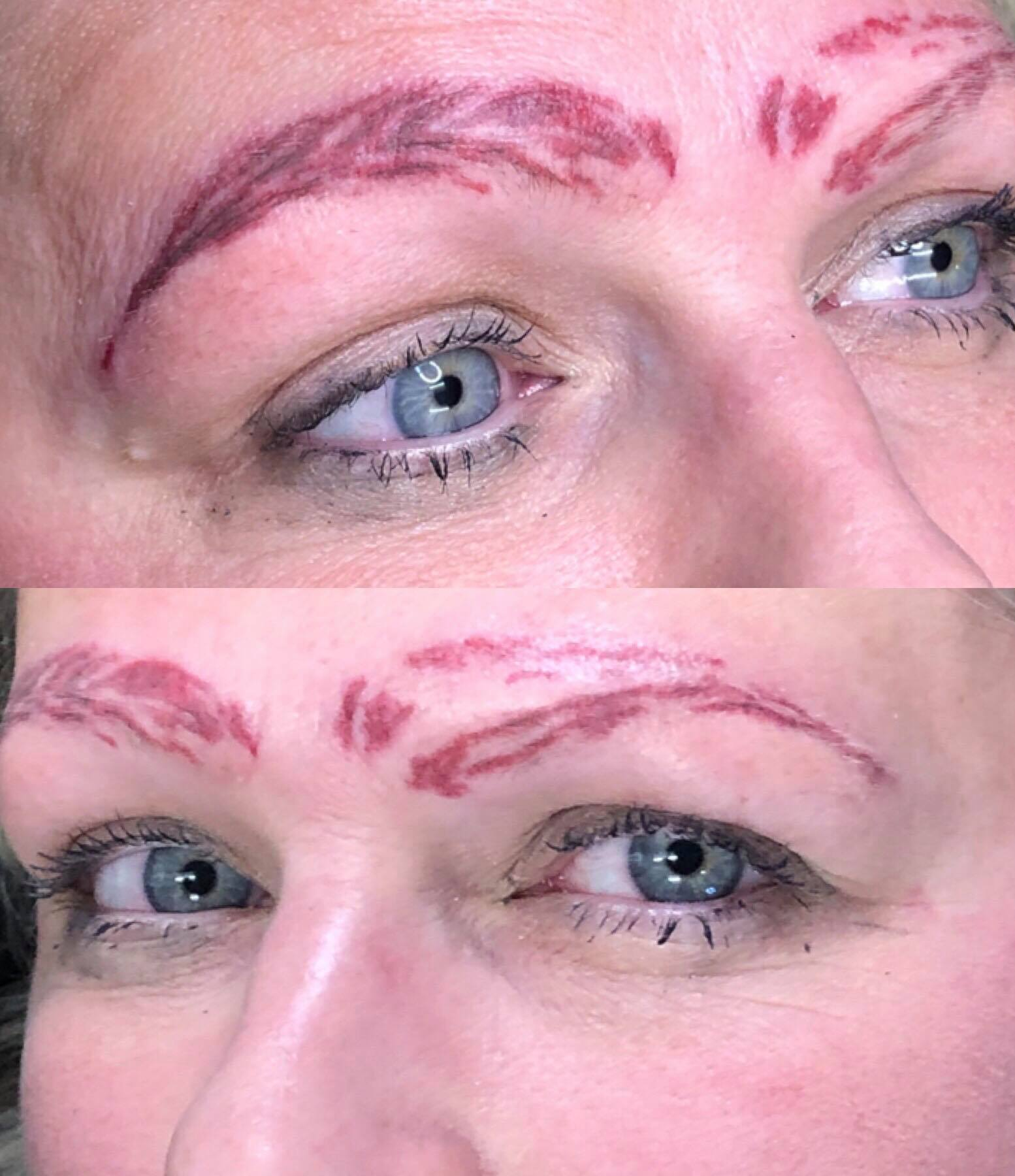 Bad Microblading MIcrobladed Eyebrows Saline Tattoo Removal Non Laser Tattoo Removal