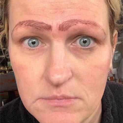 Woman Bad Microblading Microbladed Eyebrows Worst Case Story Nightmare Horrid Eyebrows