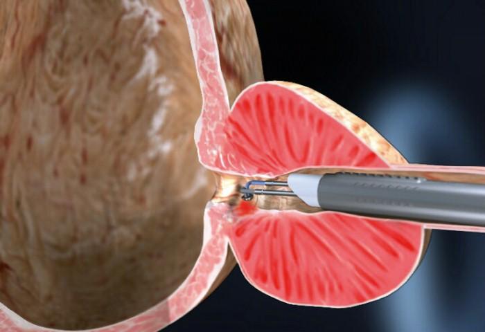 cirugía de próstata desobstructiva