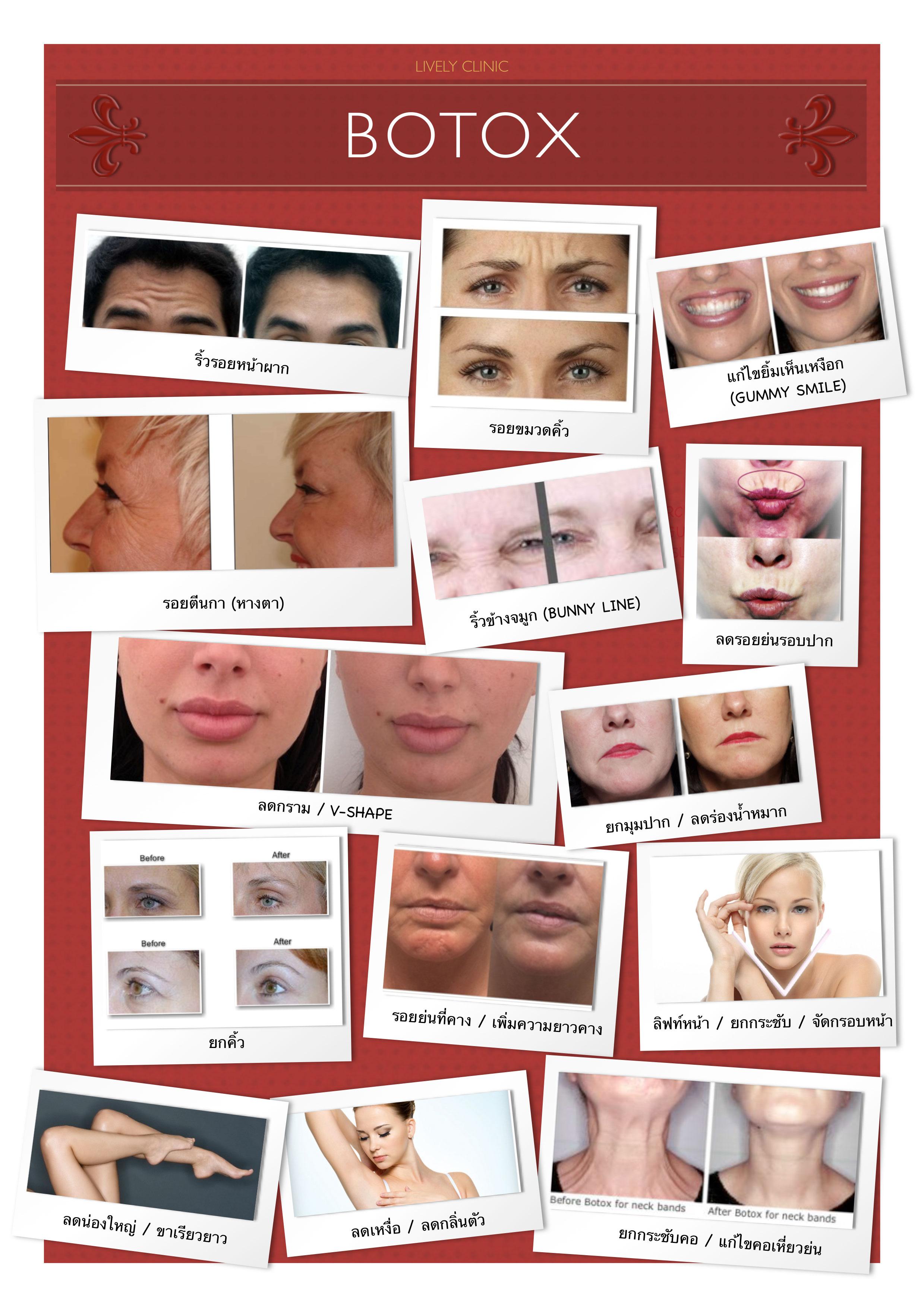 botox-pdf.jpg