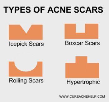 get-rid-of-acne-scars.jpg