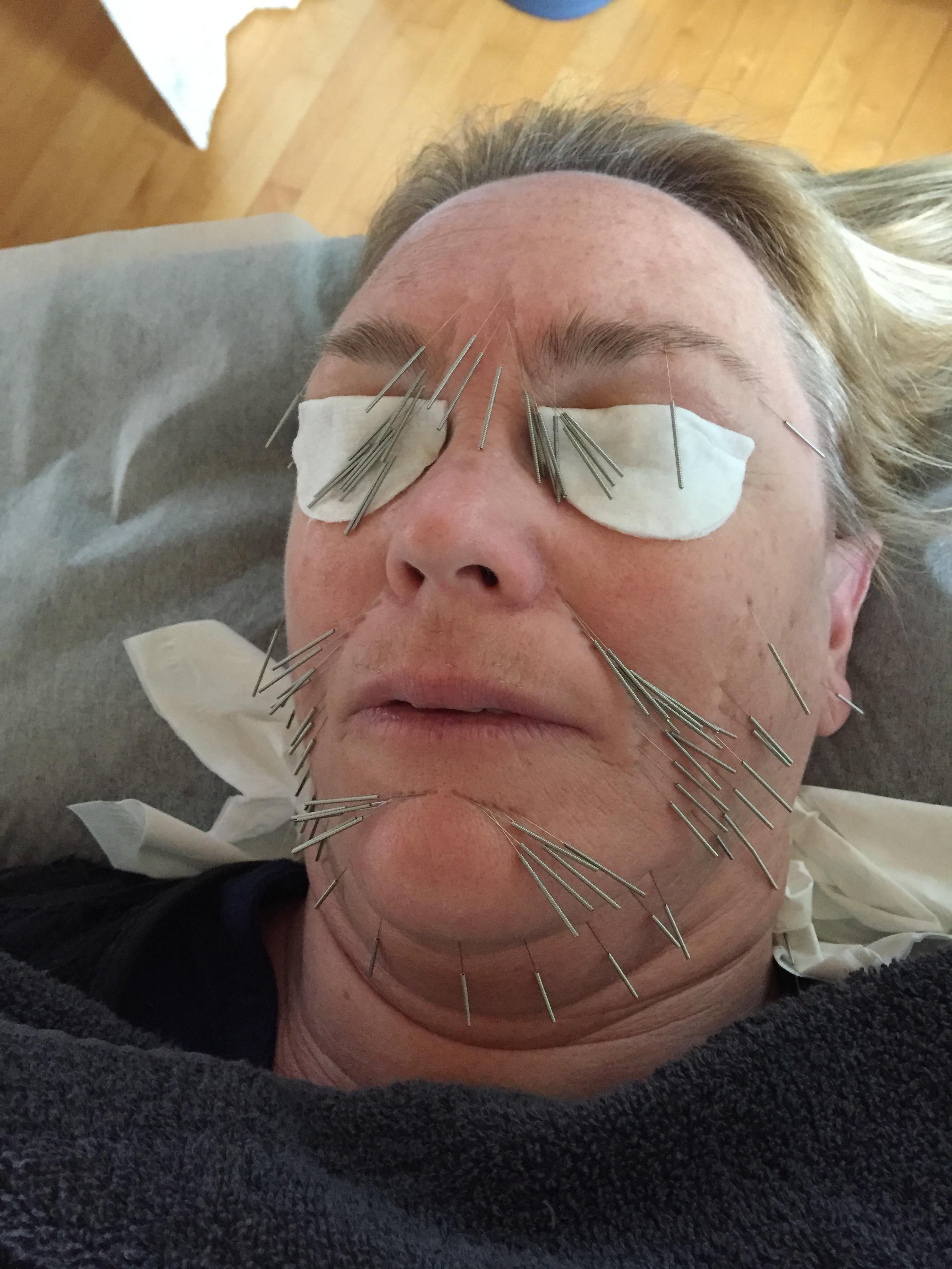 akupunktur mot rynkor